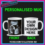 YOUR BABY SCAN PICTURE ON A MUG GREAT GIFT PERSONALISED MUM DAD GRANDPARENTS